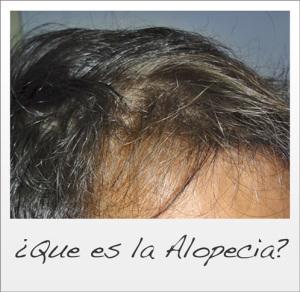 Que es la Alopecia